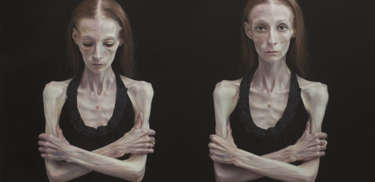 Portrait of two figures, emerging from a black background. The same woman, shown with arms folded, one averts her gaze downward while the other stares directly at the audience. The woman wears no makeup, has long red hair parted severely in the middle, and wears a black singlet top. Her white skin and use of shadow enforces her skeletal figure.